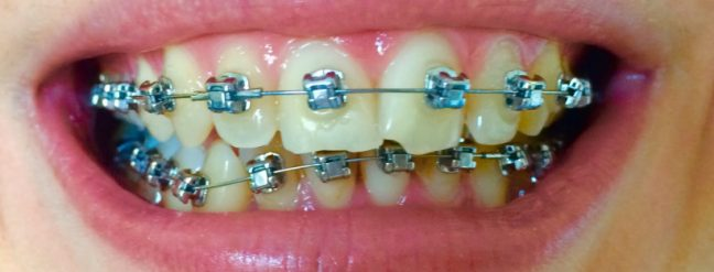 osteopatia para aliviar sintomas ortodoncia